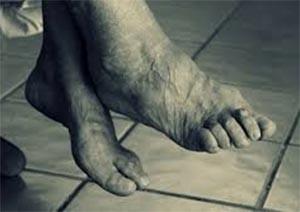 piede-geriatrico